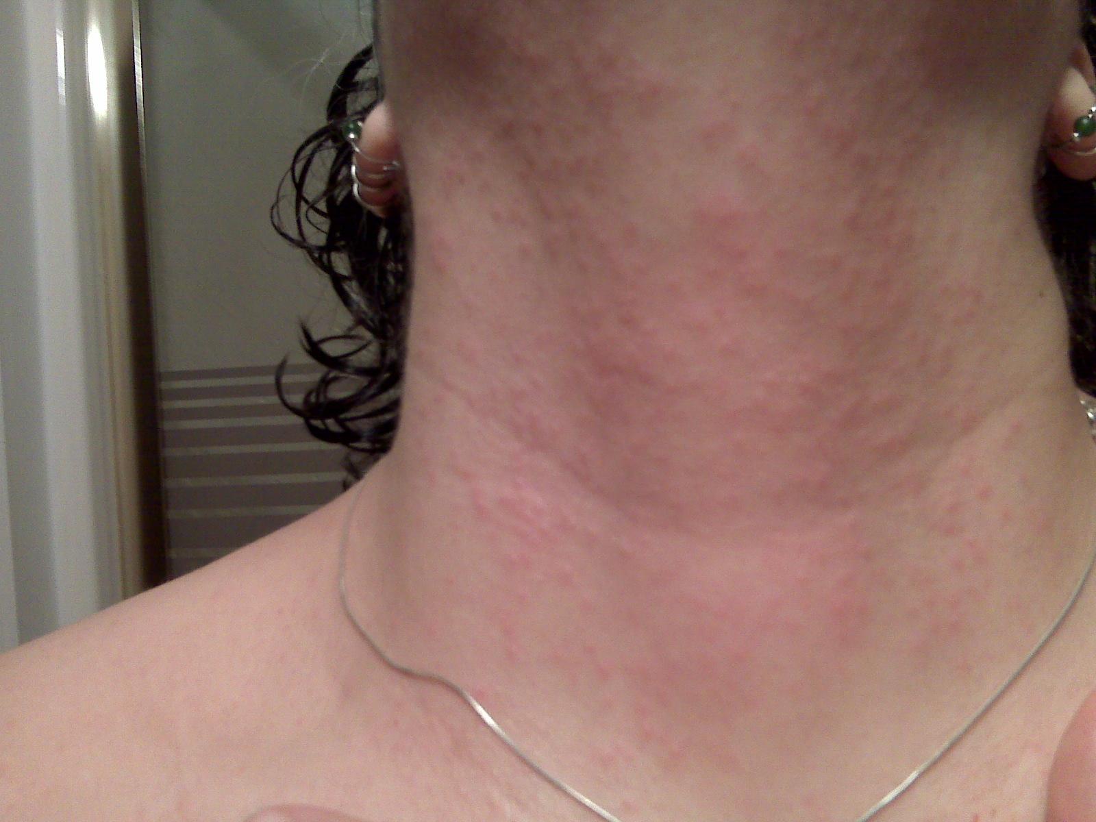 Diagnose My Skin Rash - Healthy Skin Care